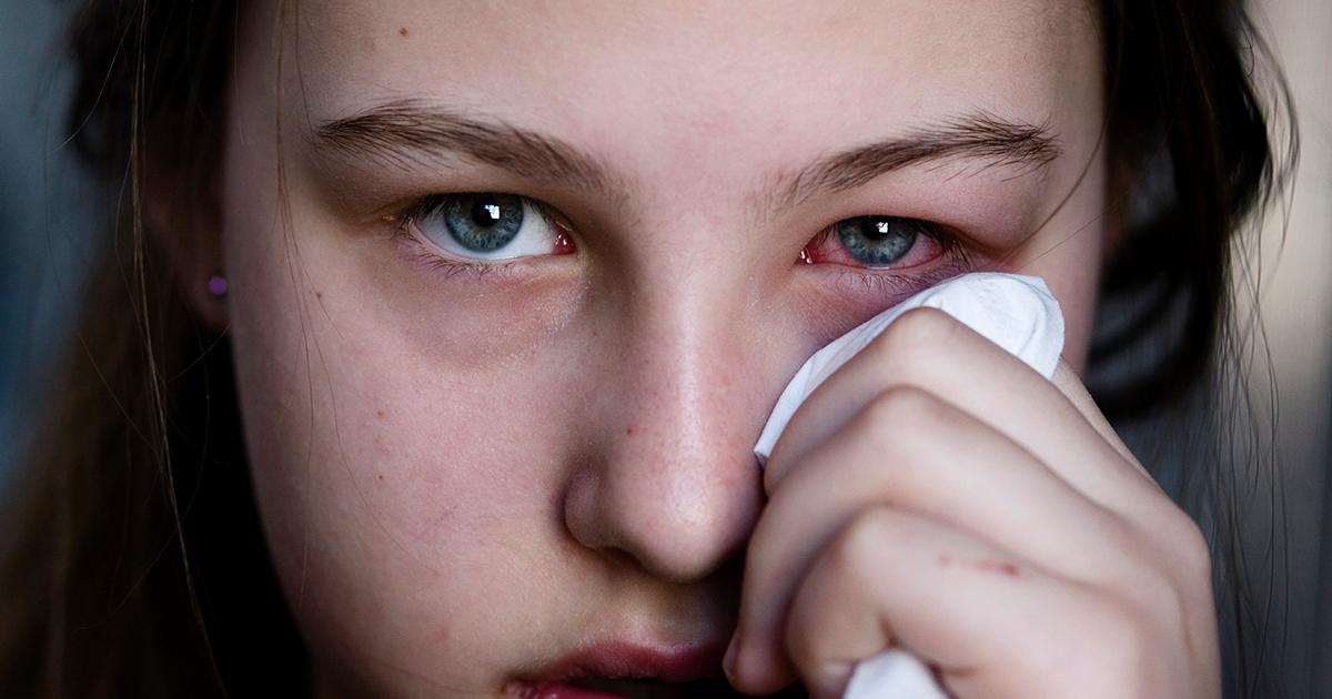 مرض الوردية من اسباب حرقان العين