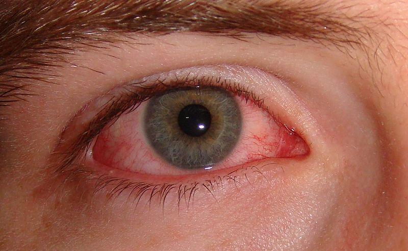 تشخيص حرقان العين