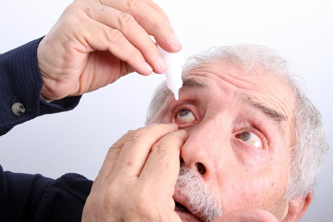 اسباب حرقان العين منها التهاب الجفون