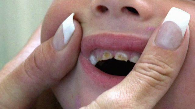 علاج تسوس الأسنان فى المراحل المبكرة والمتقدمة اليوم السابع