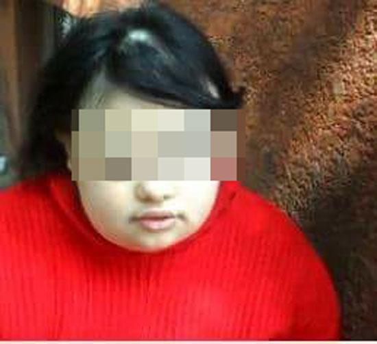 9316-طفلة-من-ذوى-الاحتياجات-الخاصة-والدى-طلق-والدتى-بسبب-إعاقتى-وكان-يرفض-خروجى-من-المنزل-بسبب-خشيته-من-الناس