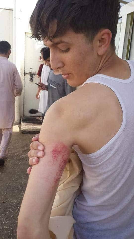 تعرض طالب افغانى لجروح بسبب انتقاده اردوغان
