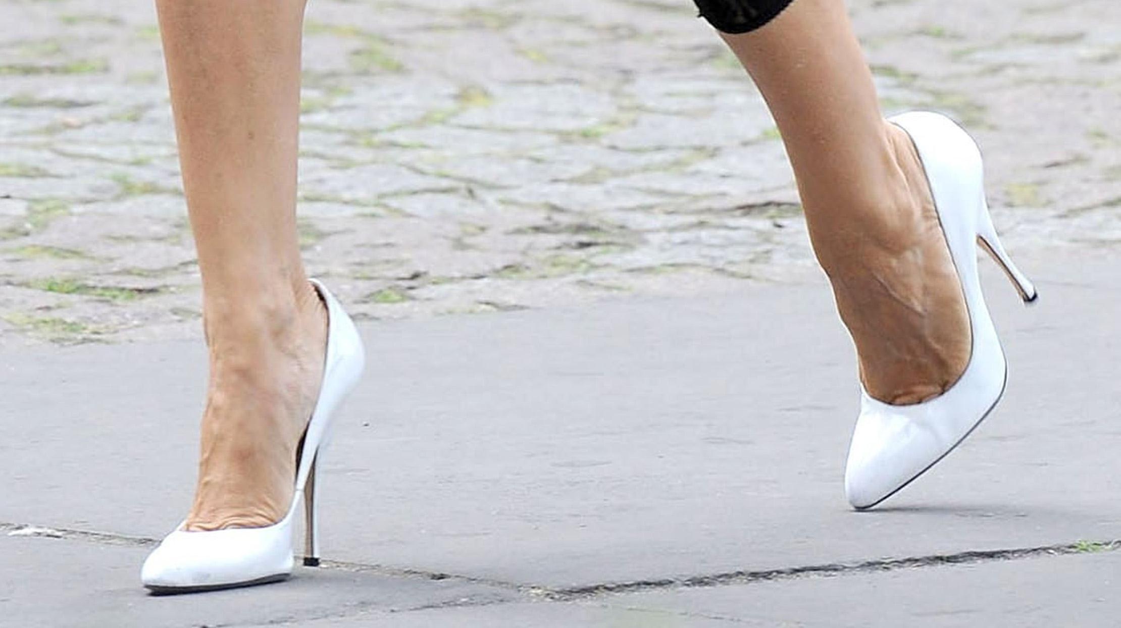 النساء اكثر عرضة للاصابة من اسباب دوالى الساقين