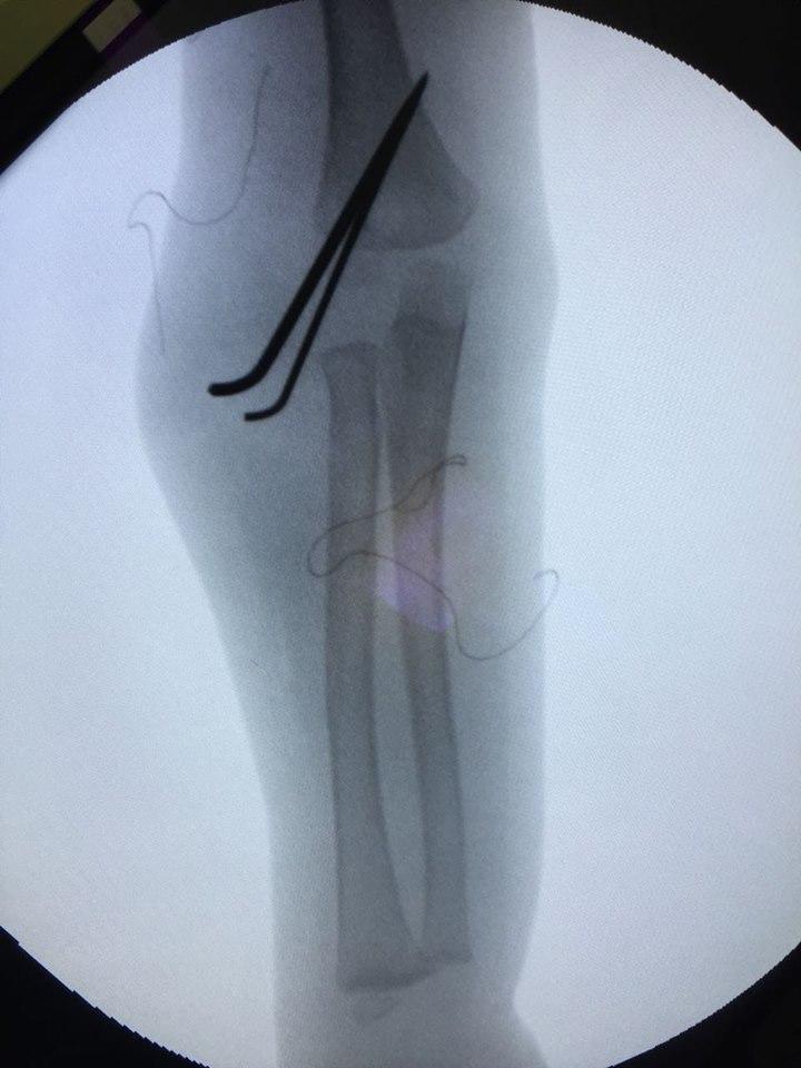 إجراء جراحة من جراحات إصلاح تشوهات عظام اﻷطفال (4)