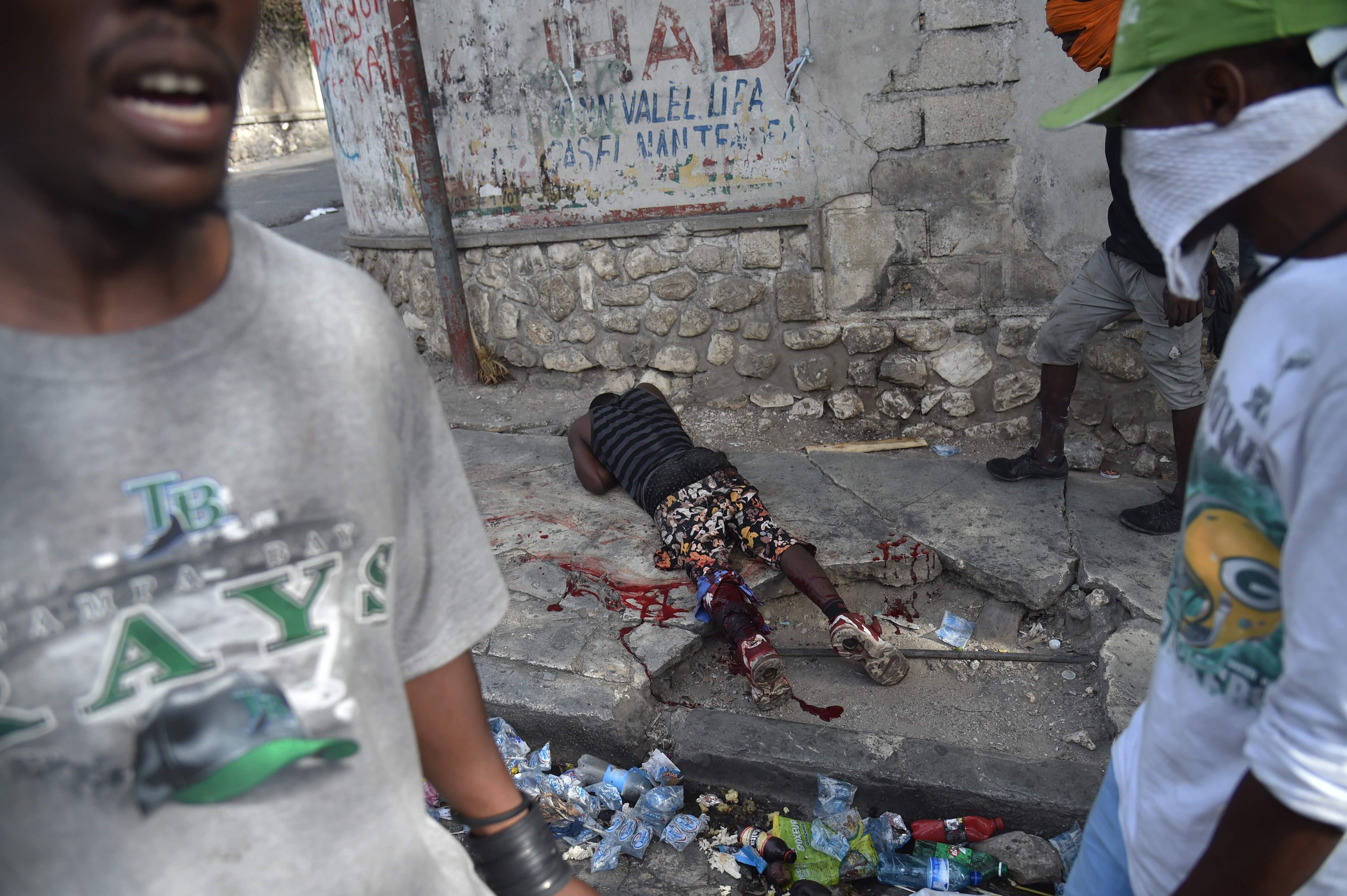 أحد المصابين برصاص الأمن