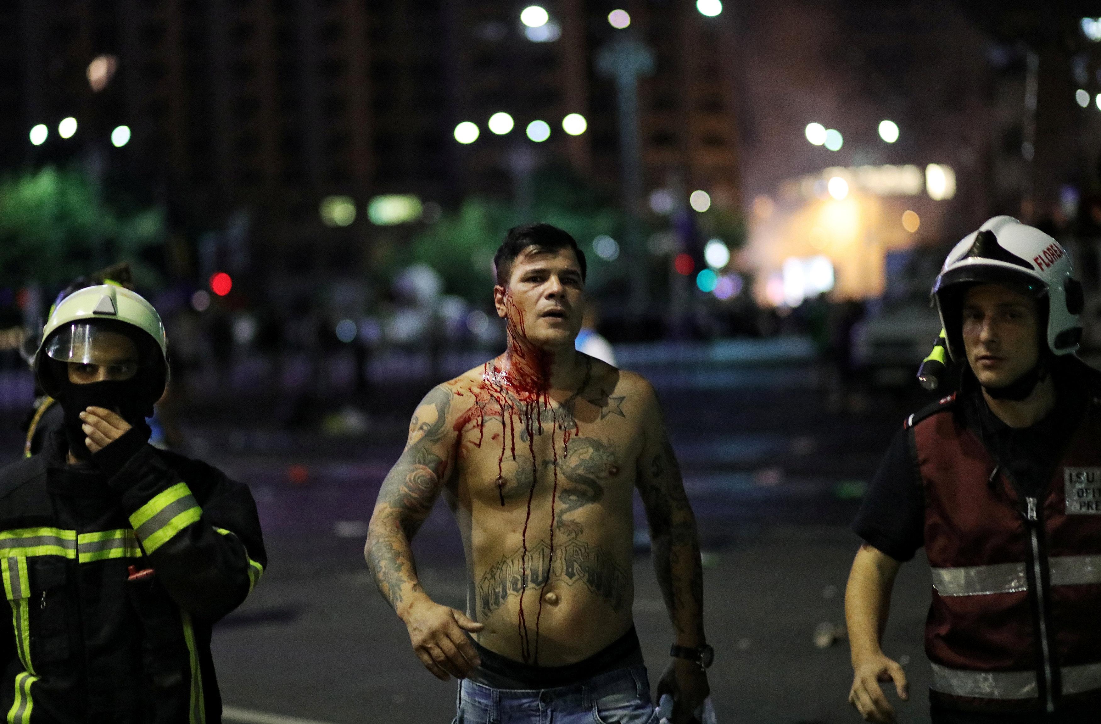 اصابة أحد المتظاهرين