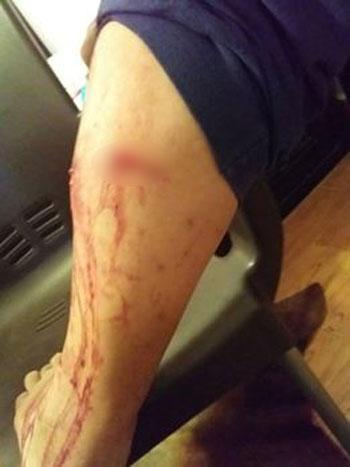 إحدى إصابات العقر بجسر السويس
