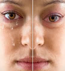 اعراض جفاف العين 2