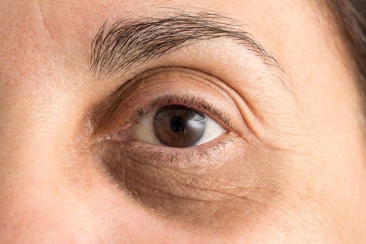نصائح لعلاج السواد تحت العين 2