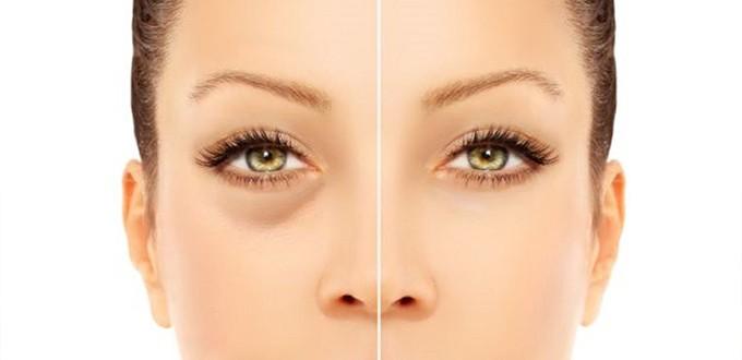 نصائح لعلاج السواد تحت العين 1