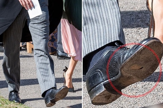 الثقب واضح فى حذاء هارى