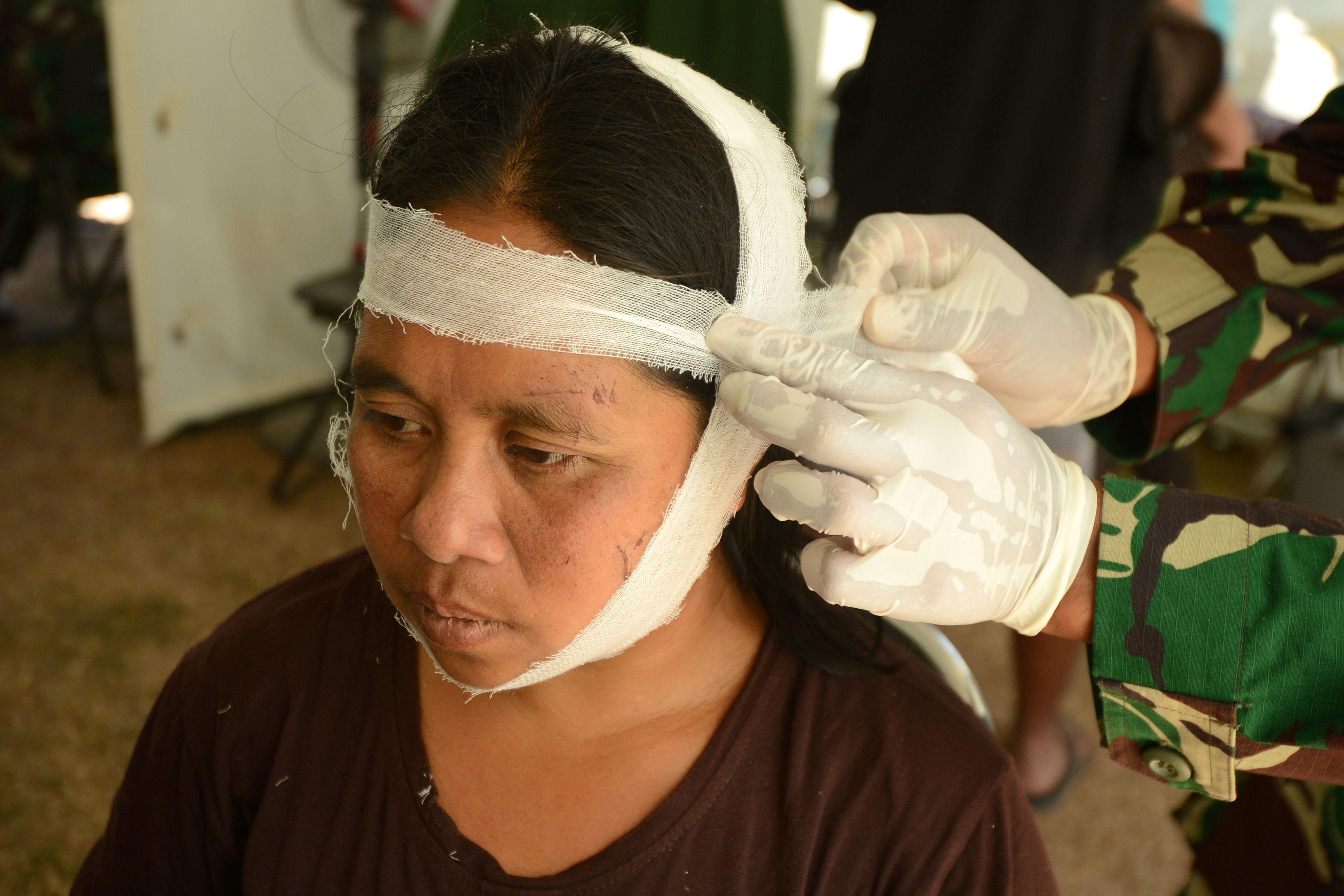 مصابة إندونيسية