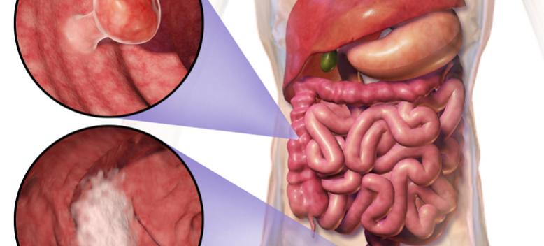 اهم اعراض سرطان القولون