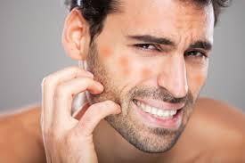 اسباب حساسية الوجه3