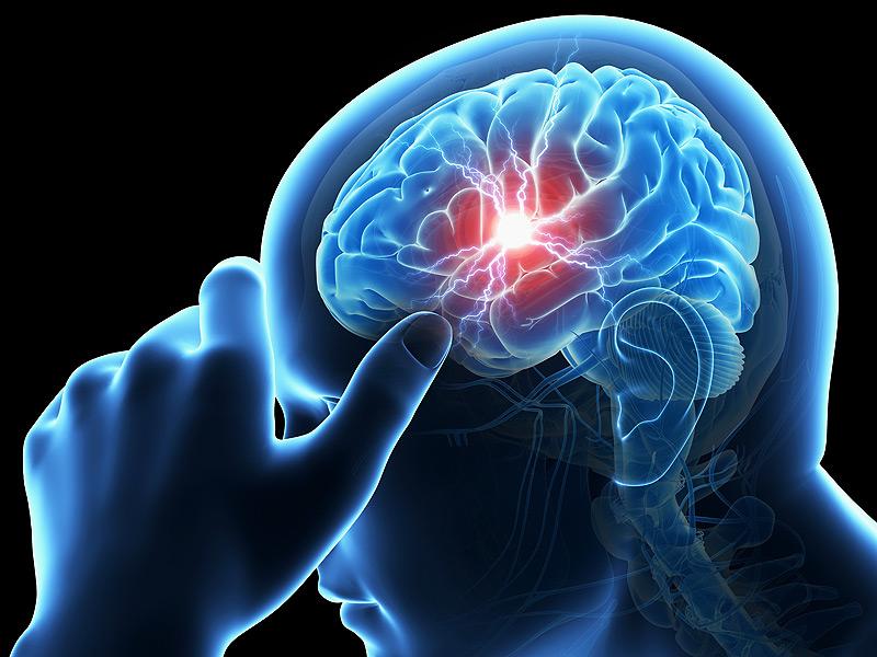 نزيف المخ