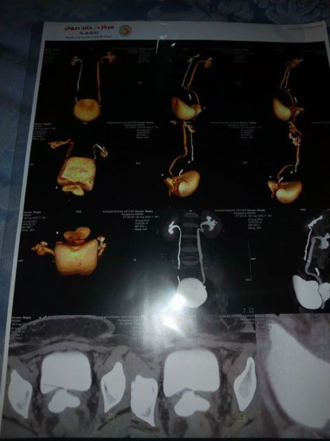 أشعة من المستشفى بالعملية الجراحية  (2)