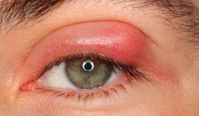 الطب البديل لعلاج حساسية العين