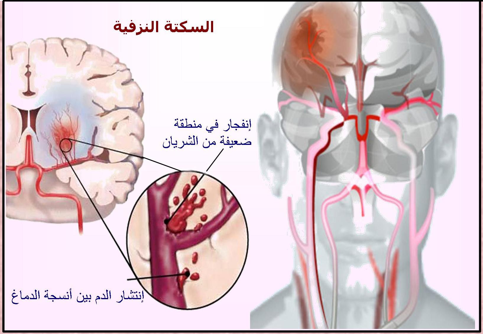 علاج جلطة المخ وأسبابها وأعراضها اليوم السابع
