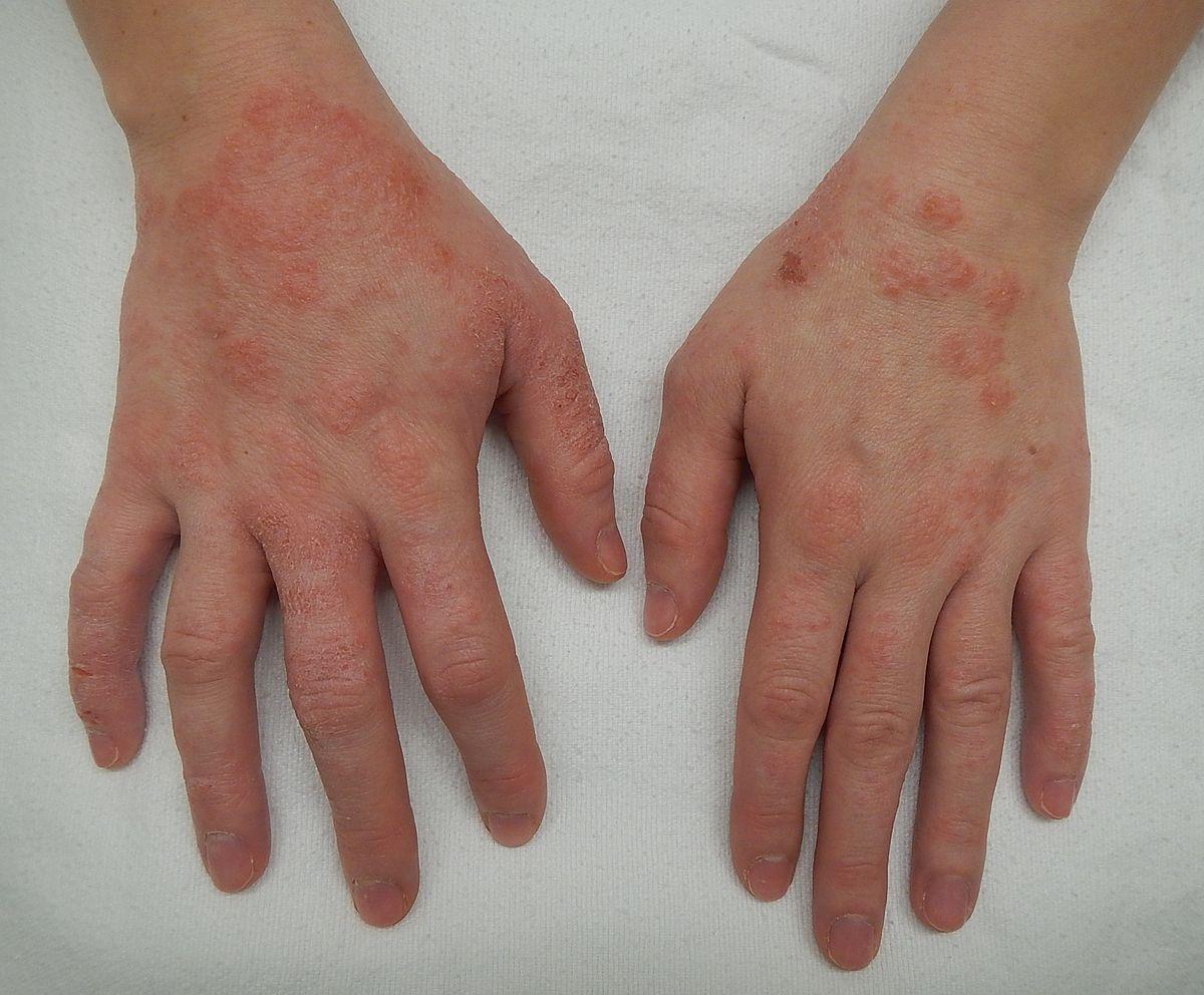 اعراض الإكزيما