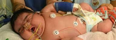 اسباب سكر الحمل وتاثيره على الجنين