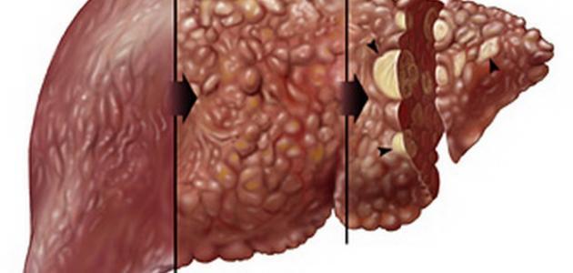 اعراض تليف الكبد