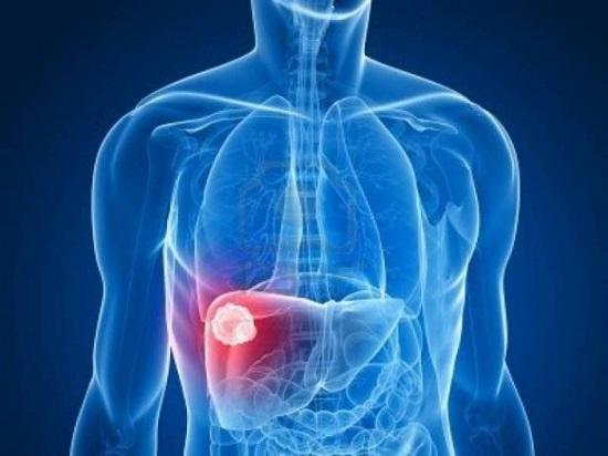 اعراض تليف الكبد 1