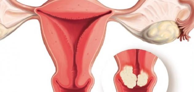 ما هو سرطان عنق الرحم