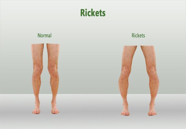 اعراض لين العظام  والفرق بين الشخص العادى والمصاب
