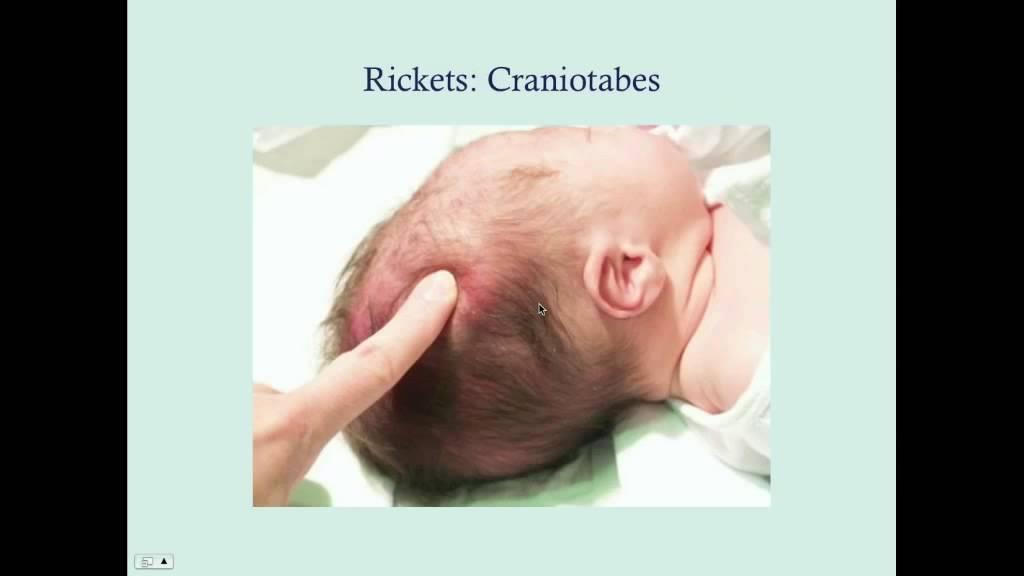 تغير شكل الجمجمة من اعراض لين العظام عند الاطفال