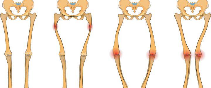 اعراض لين العظام