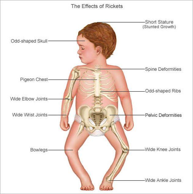 اعراض لين العظام وشكل الطفل المصاب بالكساح