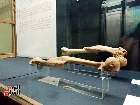 إعادة اكتشاف الموتى بالمتحف المصرى (6)