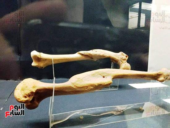 إعادة اكتشاف الموتى بالمتحف المصرى (5)
