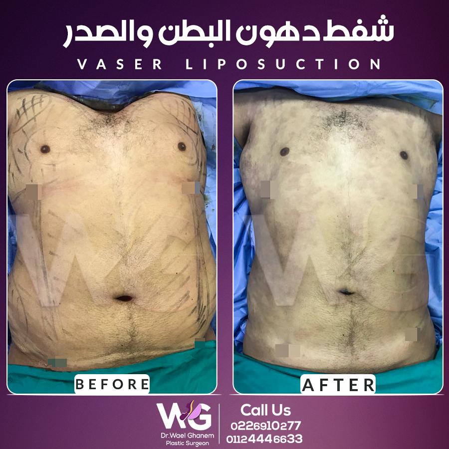 شفط الدهون بالفيزر 10 نصائح قبل وبعد إجراء العملية يقدمها دكتور وائل غانم اليوم السابع