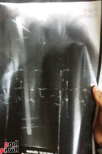 مأساة خالد شاب من القليوبية (18)