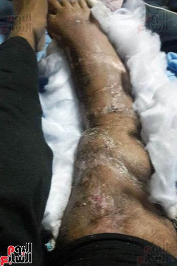 مأساة خالد شاب من القليوبية (14)