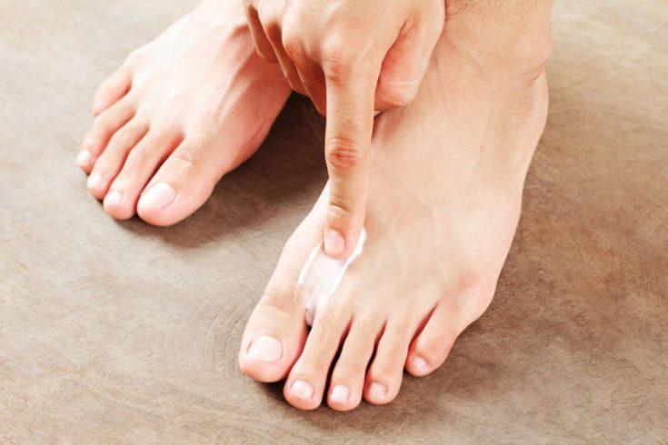 علاج فطريات القدم 1