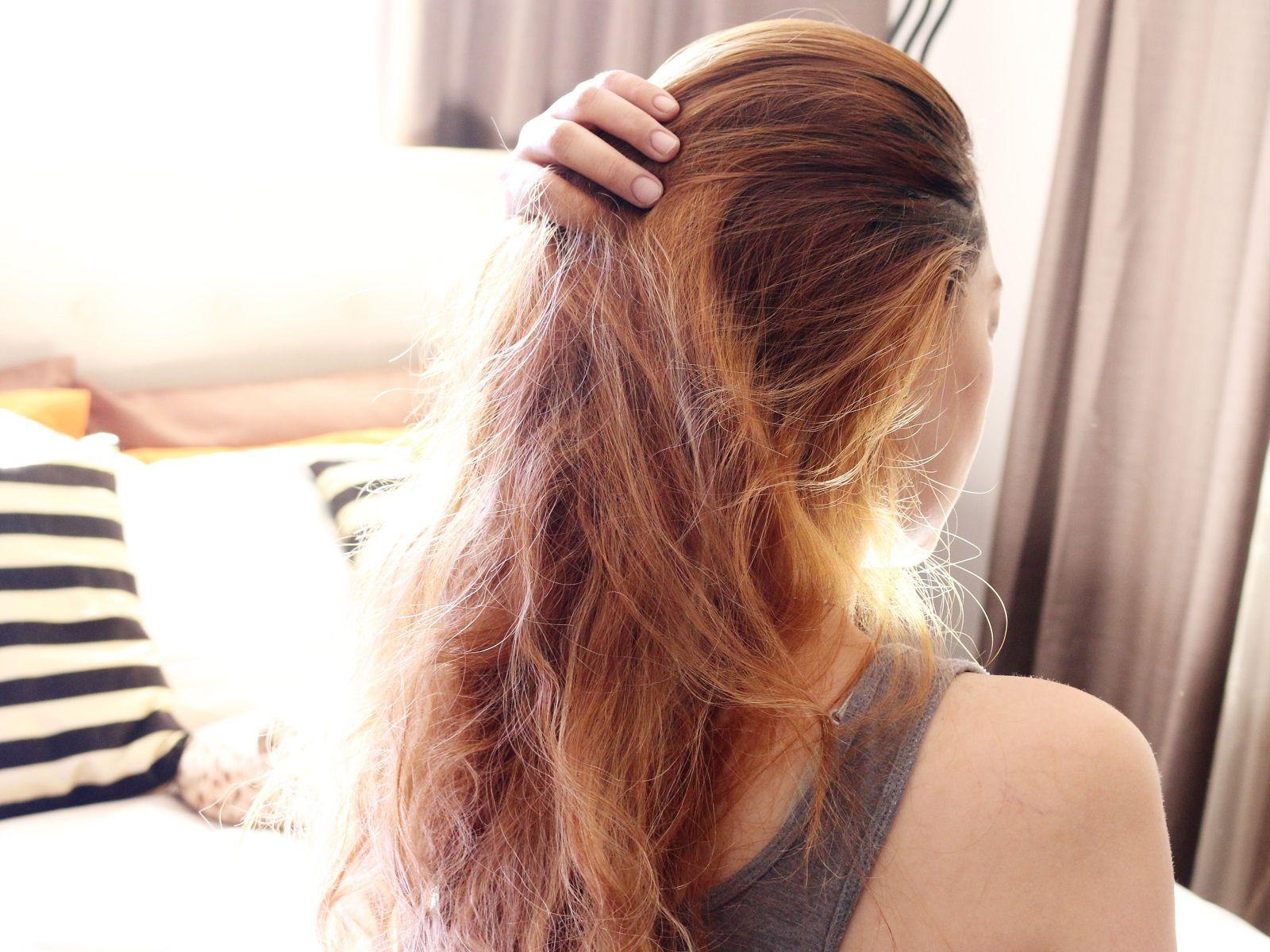 وصفات طبيعية للتخلص من قشرة الشعر (1)