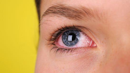 اسباب فقدان البصر المفاجئ