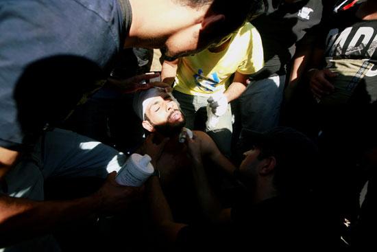 إصابة متظاهر بعد استنشاق الغاز