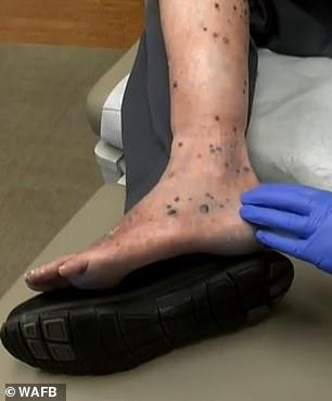 سرطان الجلد بقدم المريض