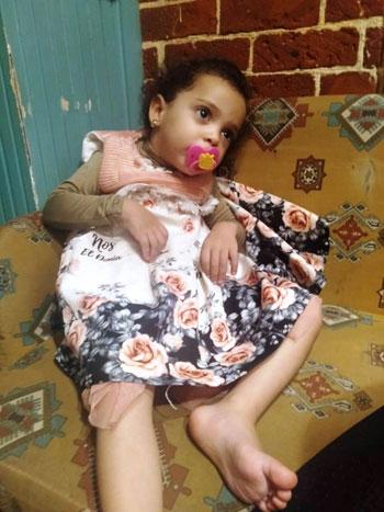 الطفلة مريم محمد موسى  (2)