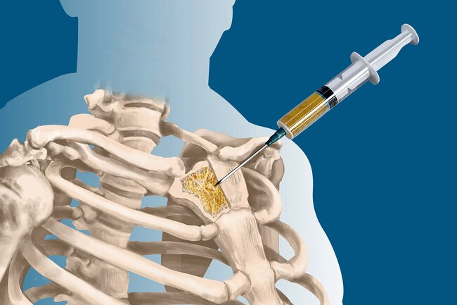 نخاع العظم