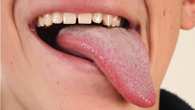 79574-tongue