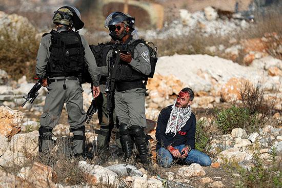 قوات لاحتلال الاسرائيلى تعتقل متظاهر فلسطينى جريح خلال المظاهرة
