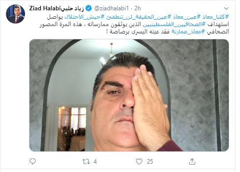 إعلاميون يتضامنون مع المصور معاذ عمارنة بعد فقد عينه برصاصة إسرائيلية. صور  (2)