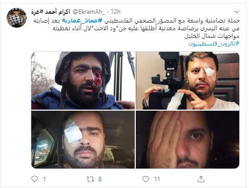 إعلاميون يتضامنون مع المصور معاذ عمارنة بعد فقد عينه برصاصة إسرائيلية. صور  (6)