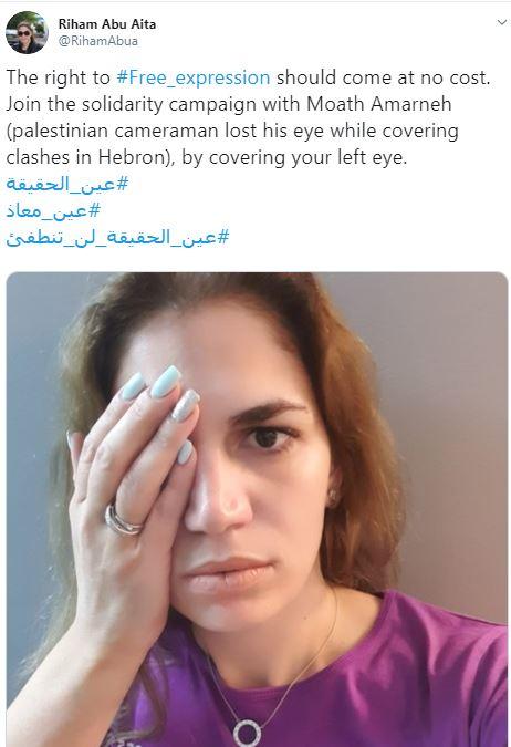 إعلاميون يتضامنون مع المصور معاذ عمارنة بعد فقد عينه برصاصة إسرائيلية. صور  (5)