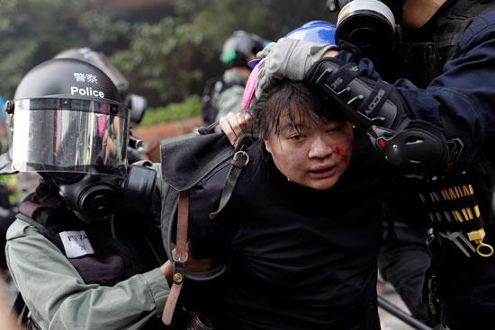 متظاهرة-مصابة-تعتقلها-قوات-الشرطة-فى-هونج-كونج
