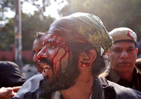 إصابة أحد الطلاب خلال الاشتباك مع الشرطة